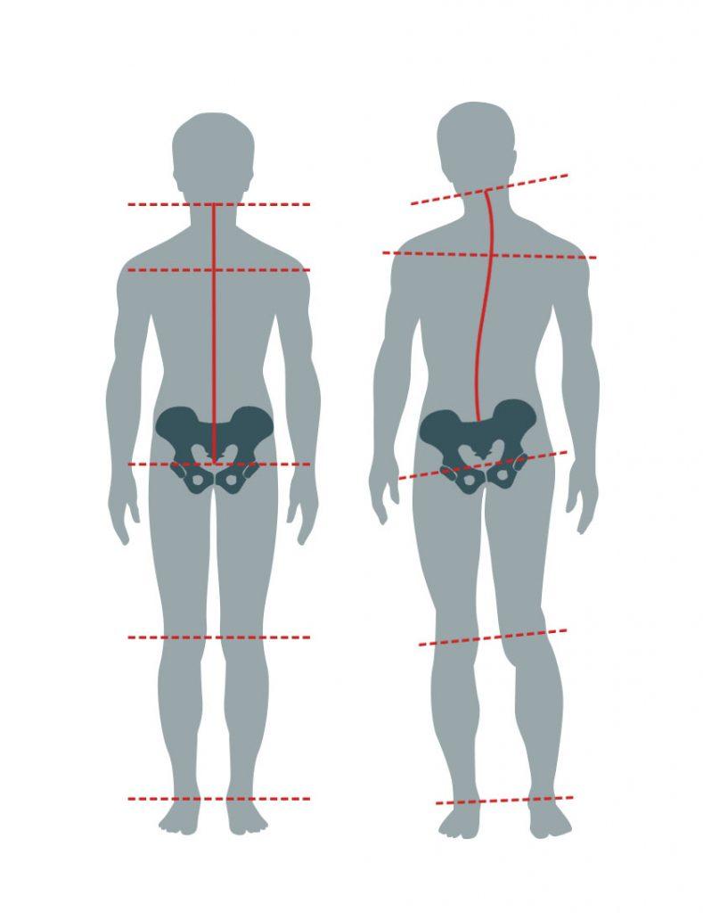 Grafik Gegenüberstellung Unterschiedlich lange Beine
